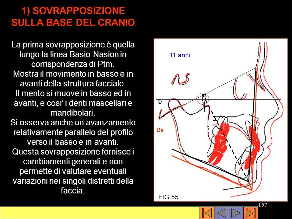 1) SOVRAPPOSIZIONE SULLA BASE DEL CRANIO