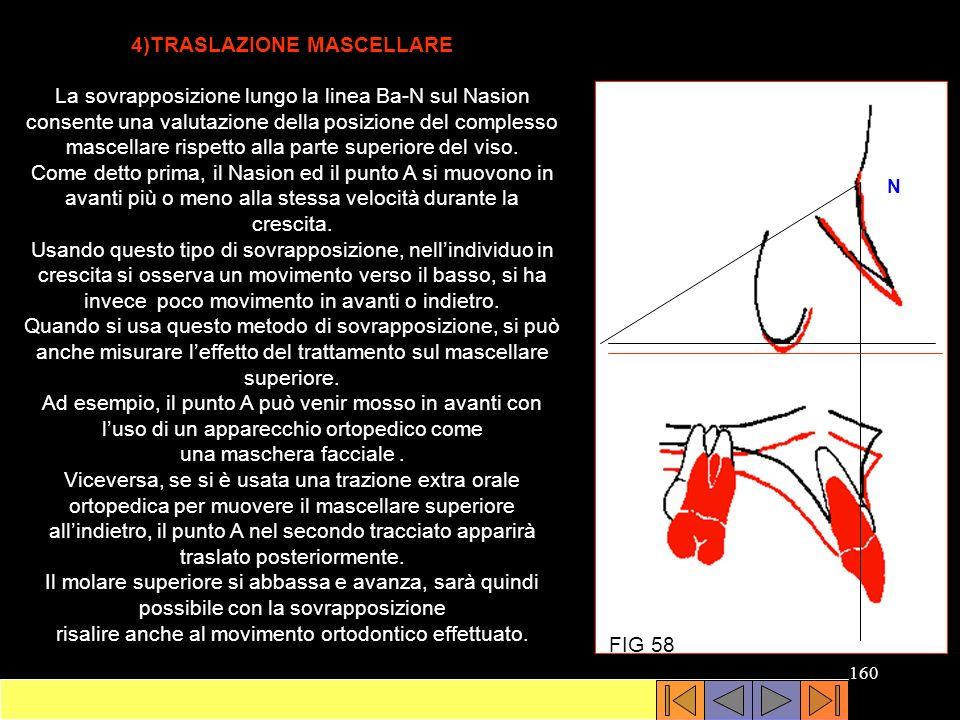 4)TRASLAZIONE MASCELLARE