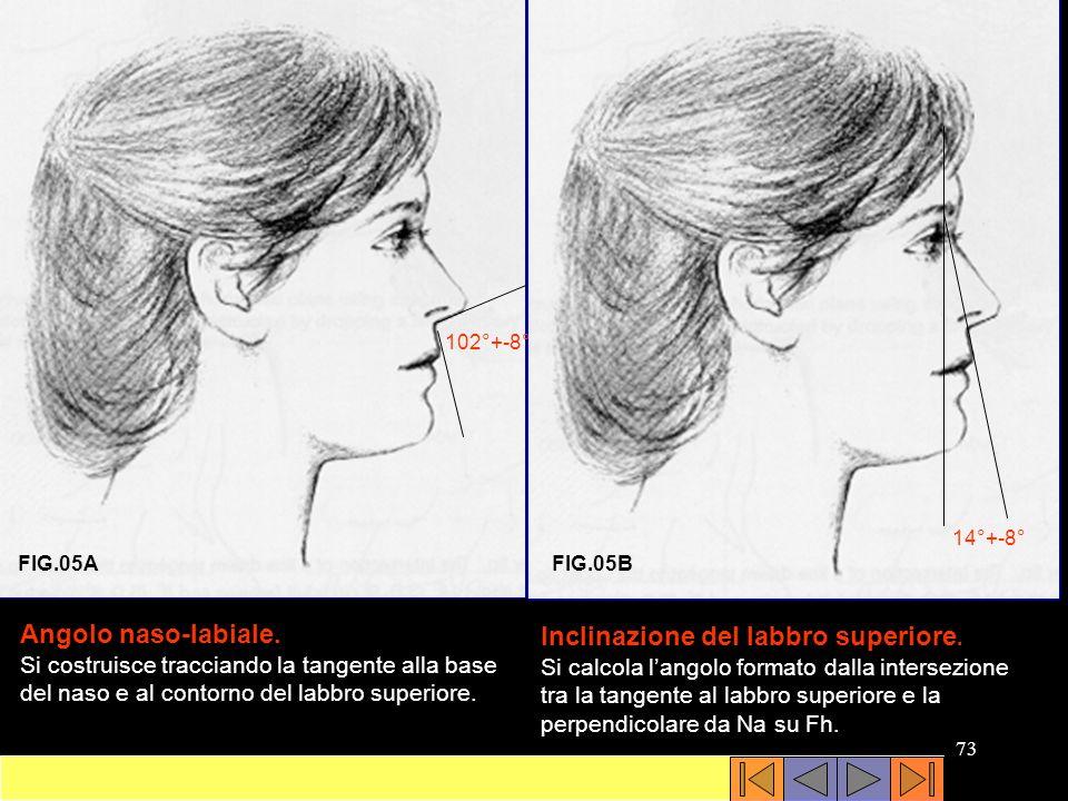 Inclinazione del labbro superiore.