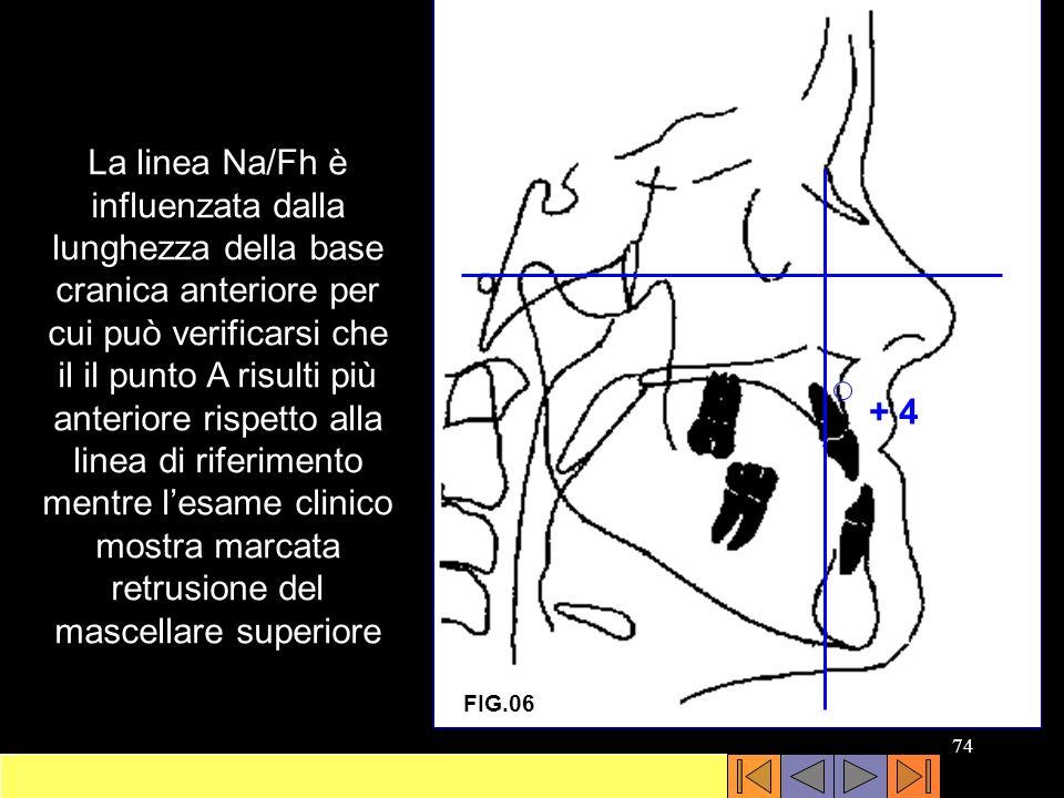 La linea Na/Fh è influenzata dalla lunghezza della base