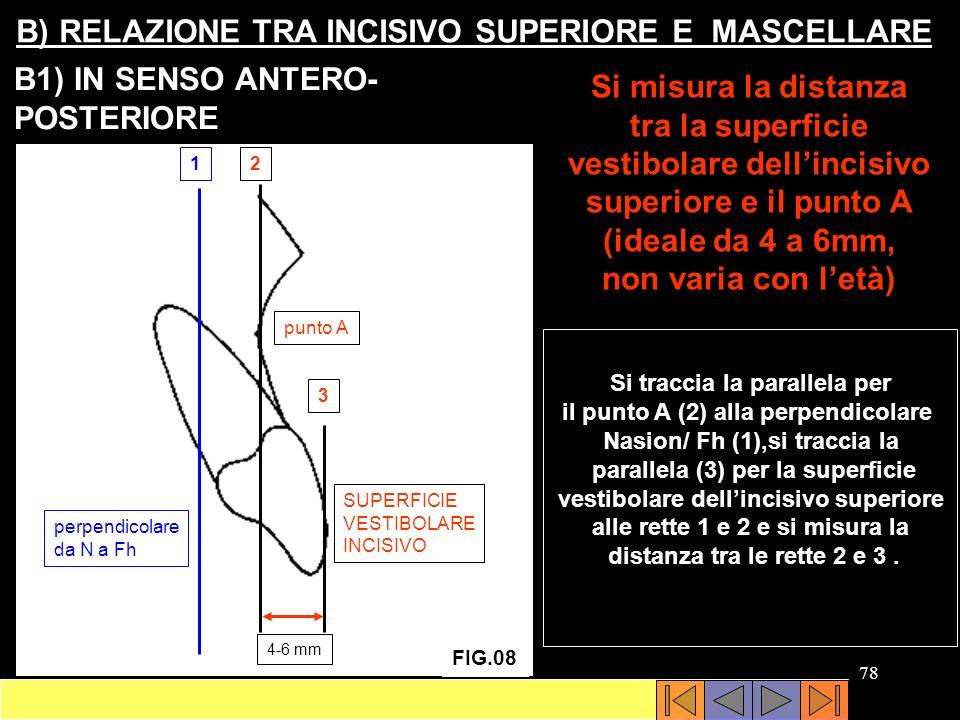 B) RELAZIONE TRA INCISIVO SUPERIORE E MASCELLARE