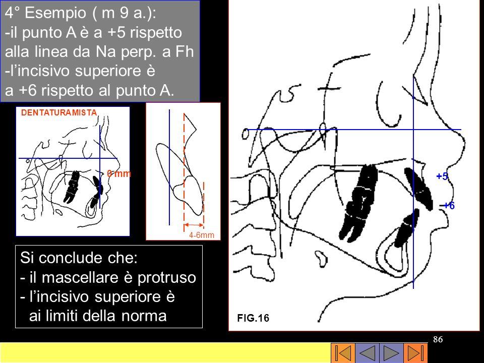 -il punto A è a +5 rispetto alla linea da Na perp. a Fh