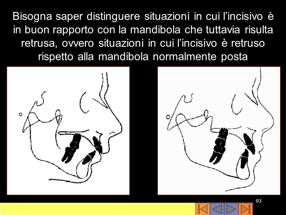 Bisogna saper distinguere situazioni in cui l'incisivo è in buon rapporto con la mandibola che tuttavia risulta retrusa, ovvero situazioni in cui l'incisivo è retruso rispetto alla mandibola normalmente posta