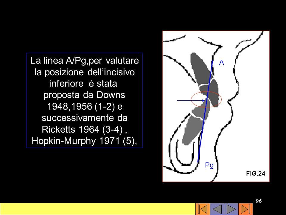 La linea A/Pg,per valutare la posizione dell'incisivo