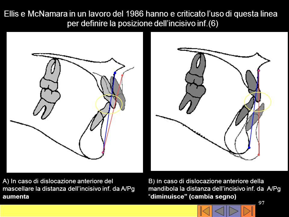 per definire la posizione dell'incisivo inf.(6)