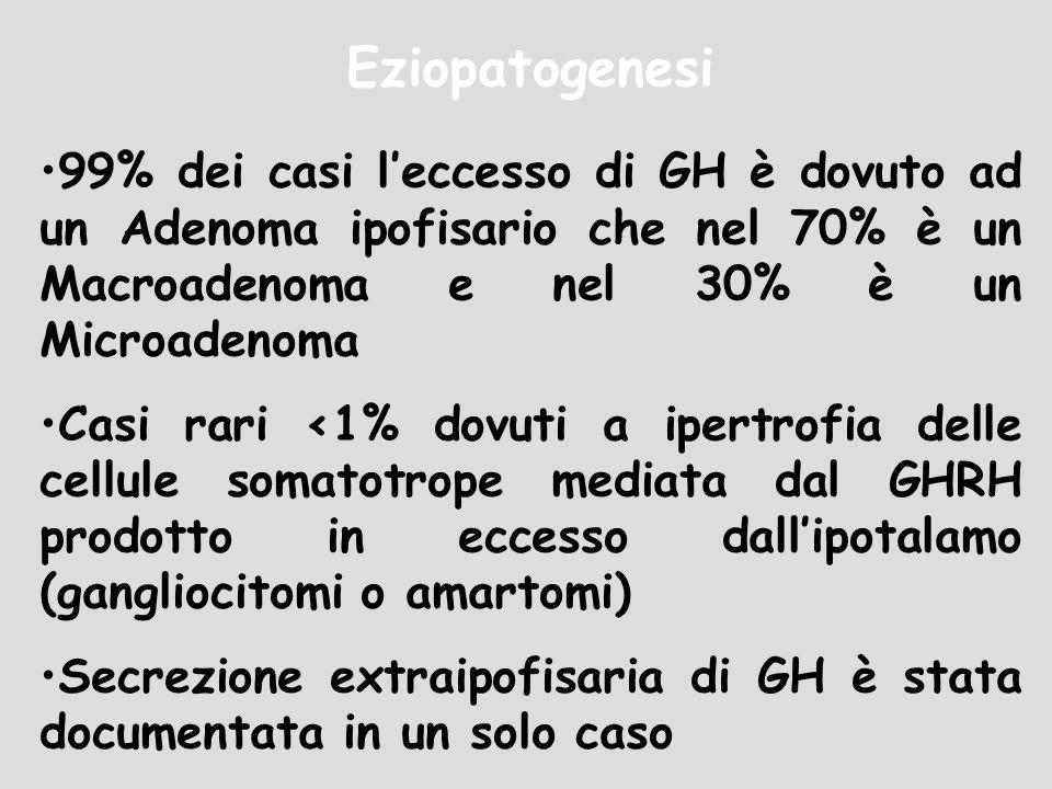 Eziopatogenesi99% dei casi l'eccesso di GH è dovuto ad un Adenoma ipofisario che nel 70% è un Macroadenoma e nel 30% è un Microadenoma.