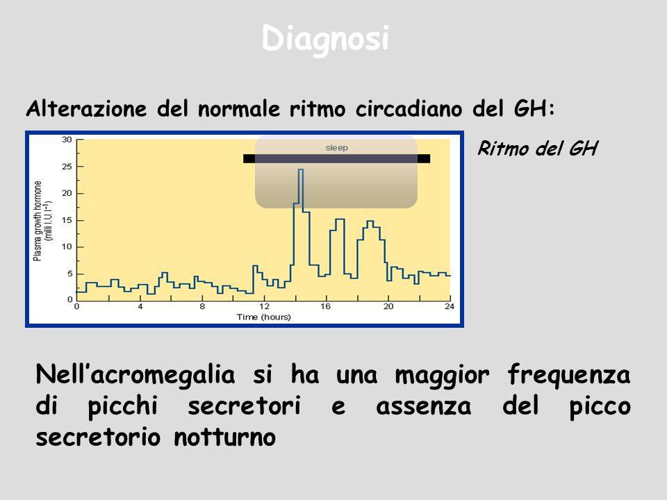 DiagnosiAlterazione del normale ritmo circadiano del GH: Ritmo del GH.