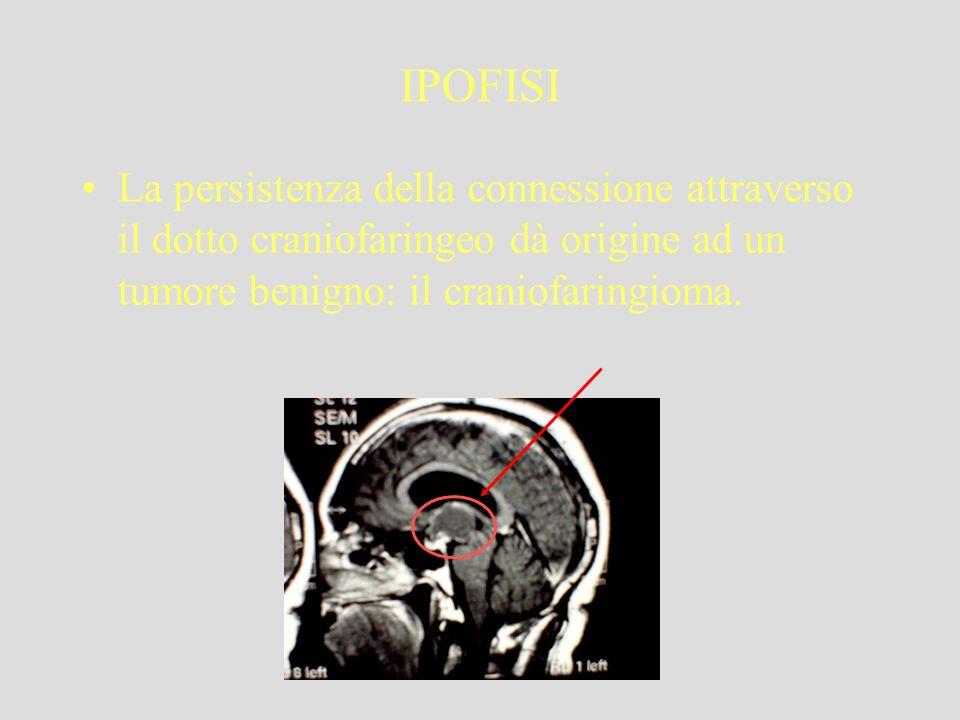 IPOFISILa persistenza della connessione attraverso il dotto craniofaringeo dà origine ad un tumore benigno: il craniofaringioma.