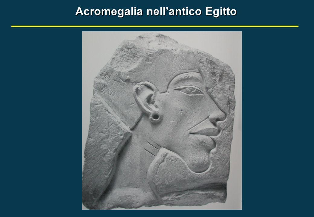 Acromegalia nell'antico Egitto