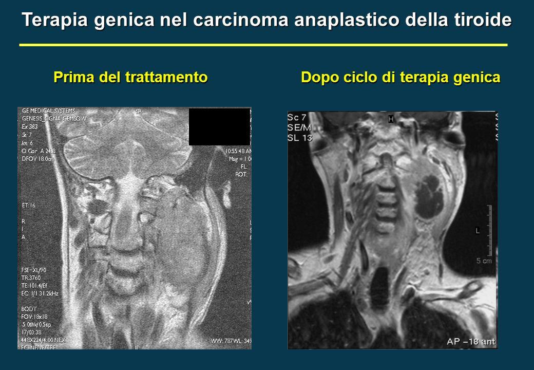 Terapia genica nel carcinoma anaplastico della tiroide