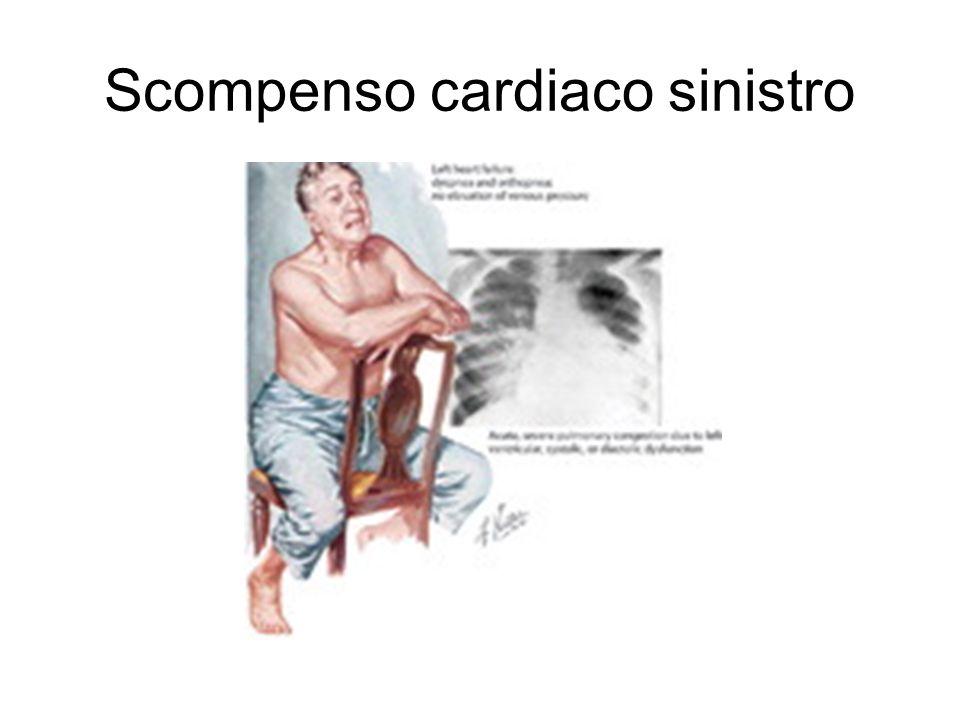 Scompenso cardiaco sinistro
