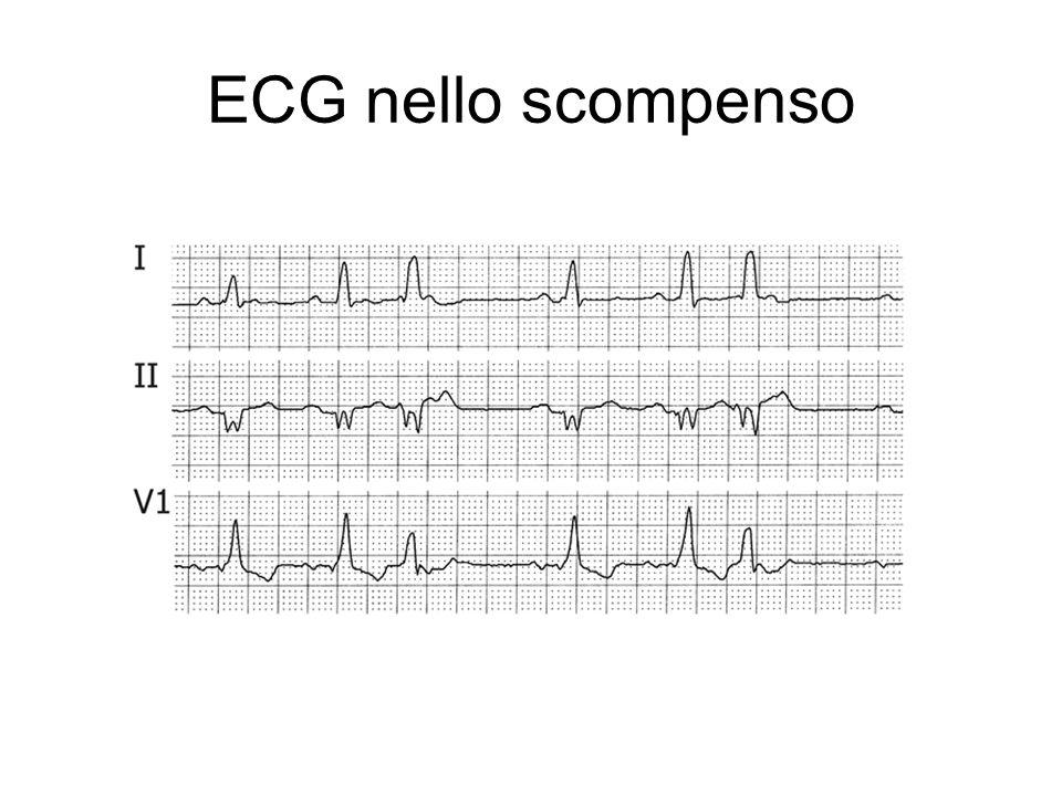 ECG nello scompenso