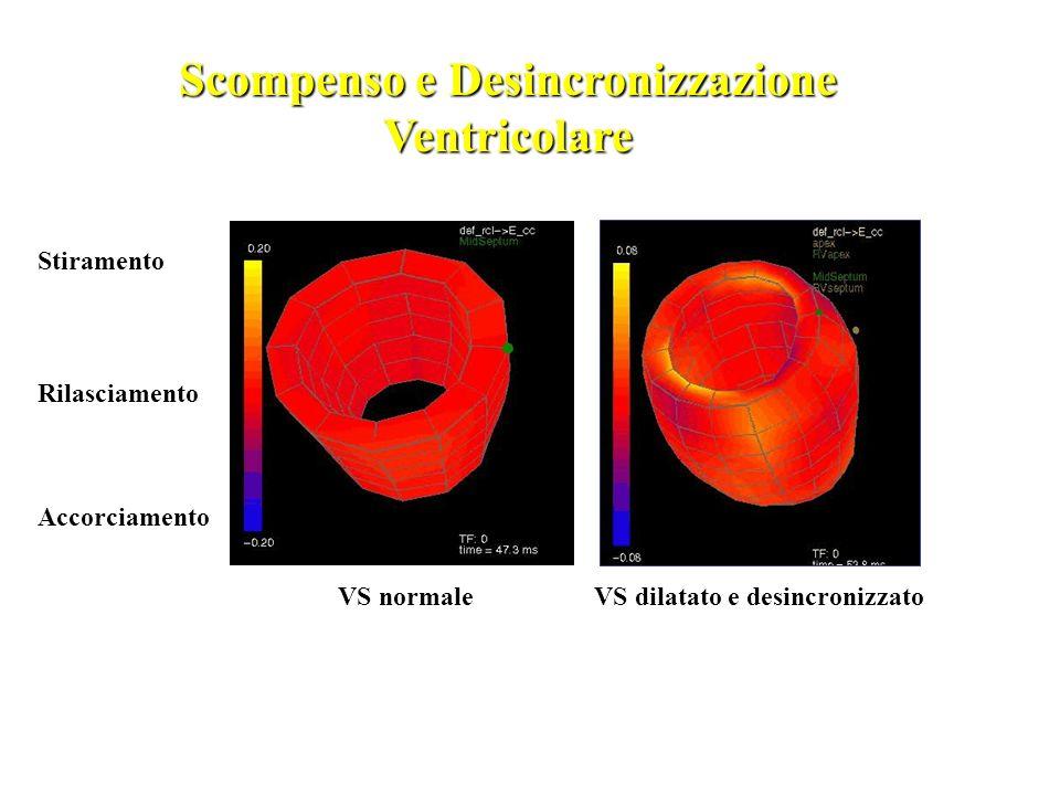 Scompenso e Desincronizzazione Ventricolare
