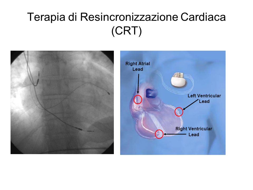 Terapia di Resincronizzazione Cardiaca (CRT)