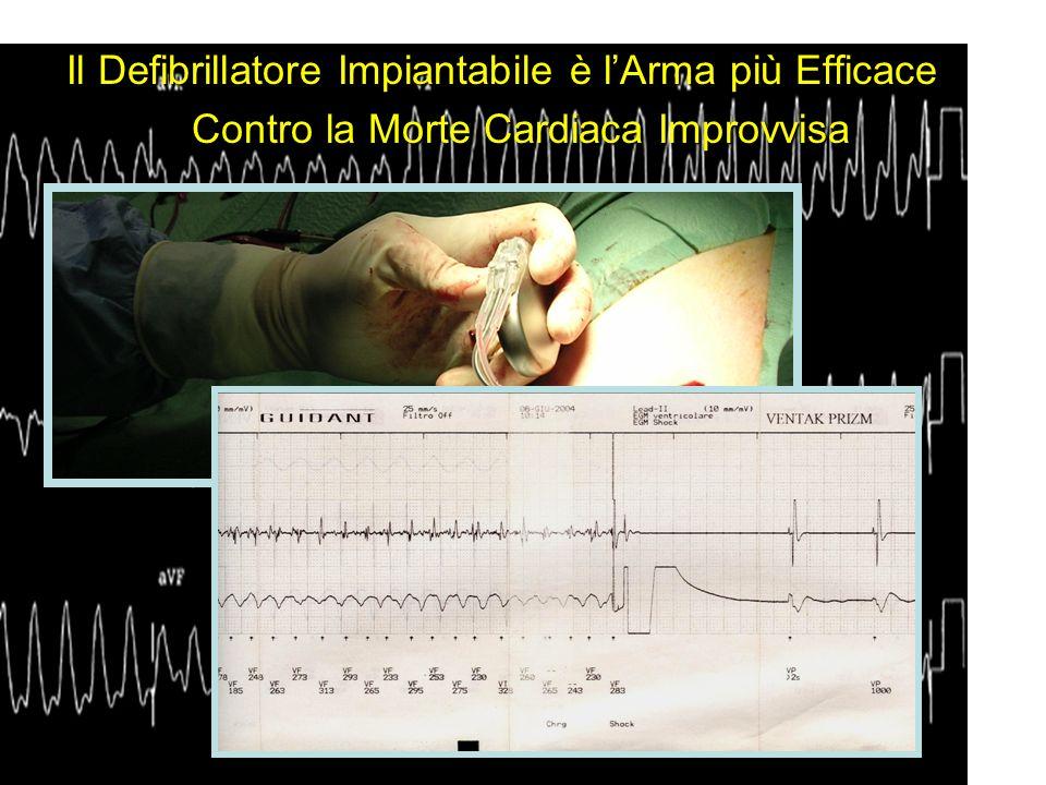 Il Defibrillatore Impiantabile è l'Arma più Efficace Contro la Morte Cardiaca Improvvisa