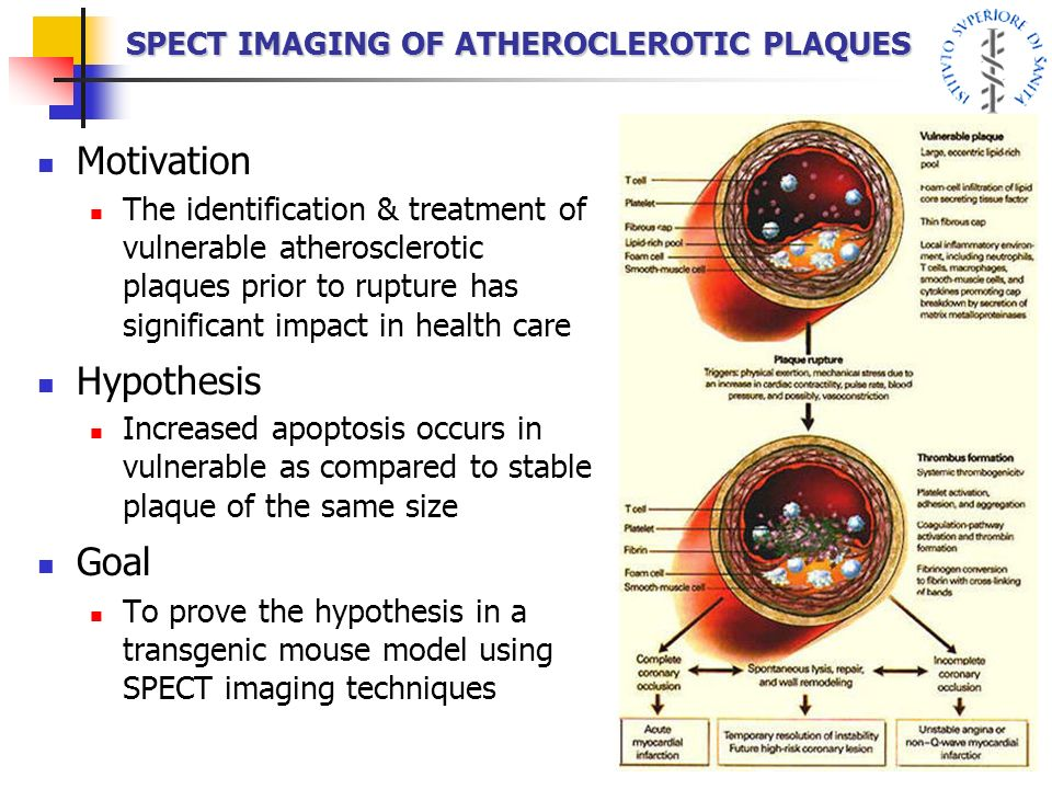 SPECT IMAGING OF ATHEROCLEROTIC PLAQUES