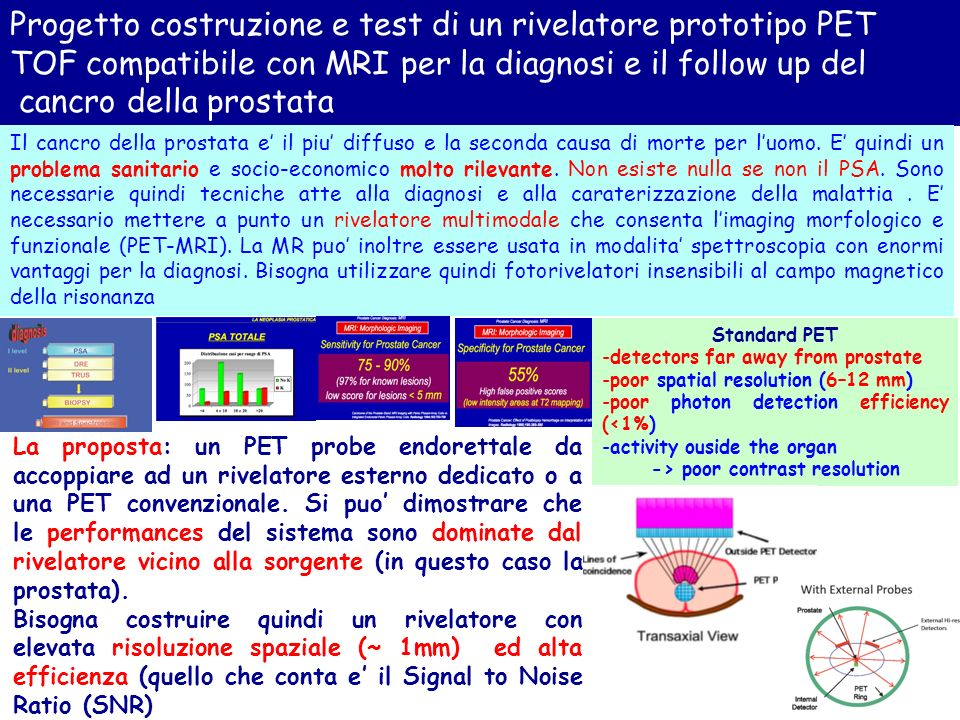 Progetto costruzione e test di un rivelatore prototipo PET TOF compatibile con MRI per la diagnosi e il follow up del