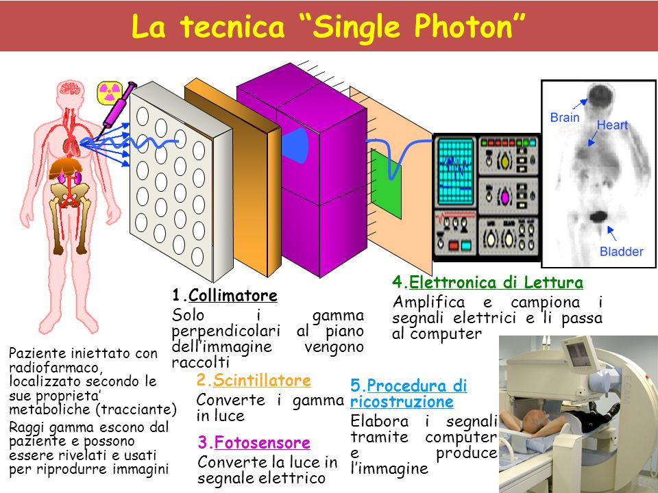 La tecnica Single Photon