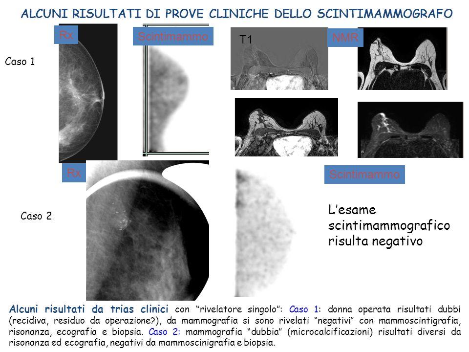 L'esame scintimammografico risulta negativo