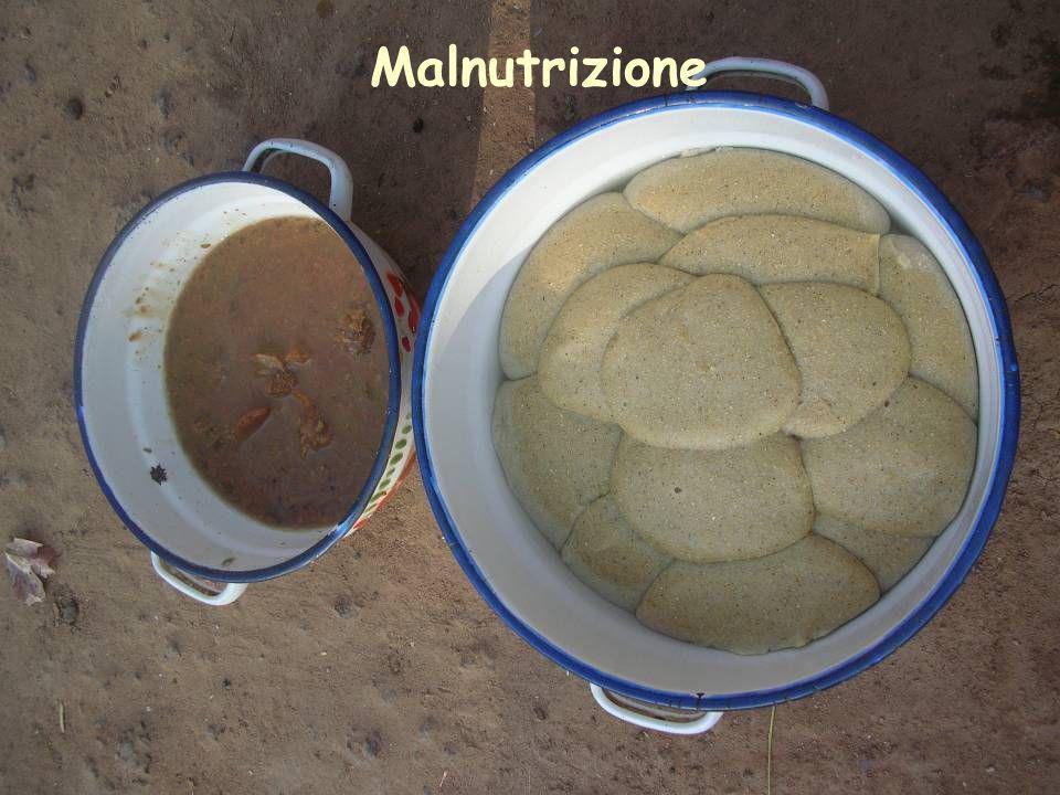 Malnutrizione