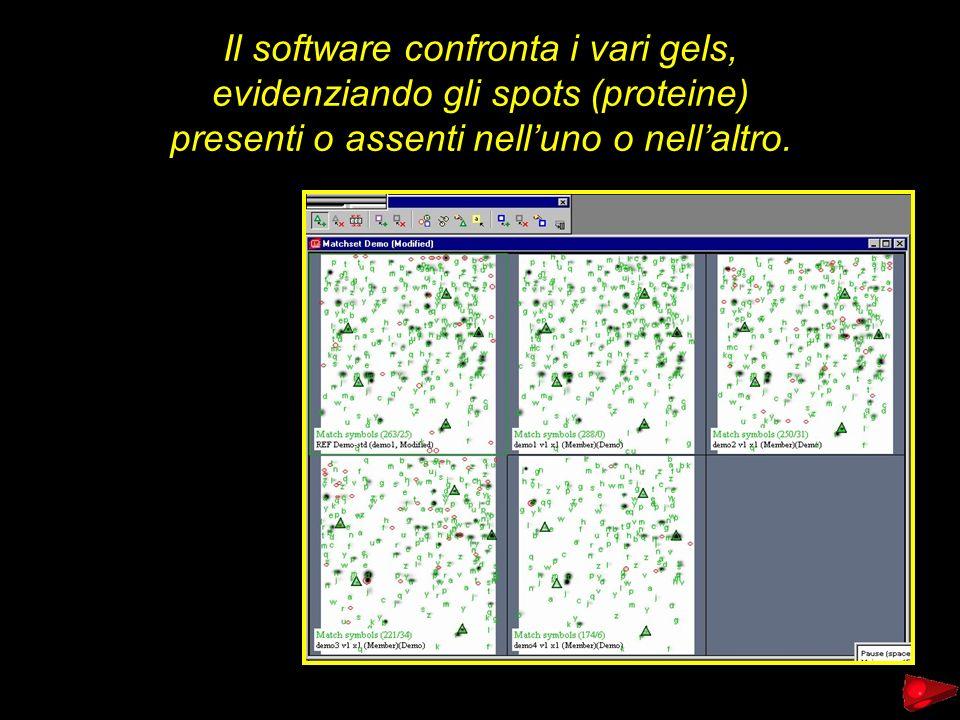 Il software confronta i vari gels, evidenziando gli spots (proteine)