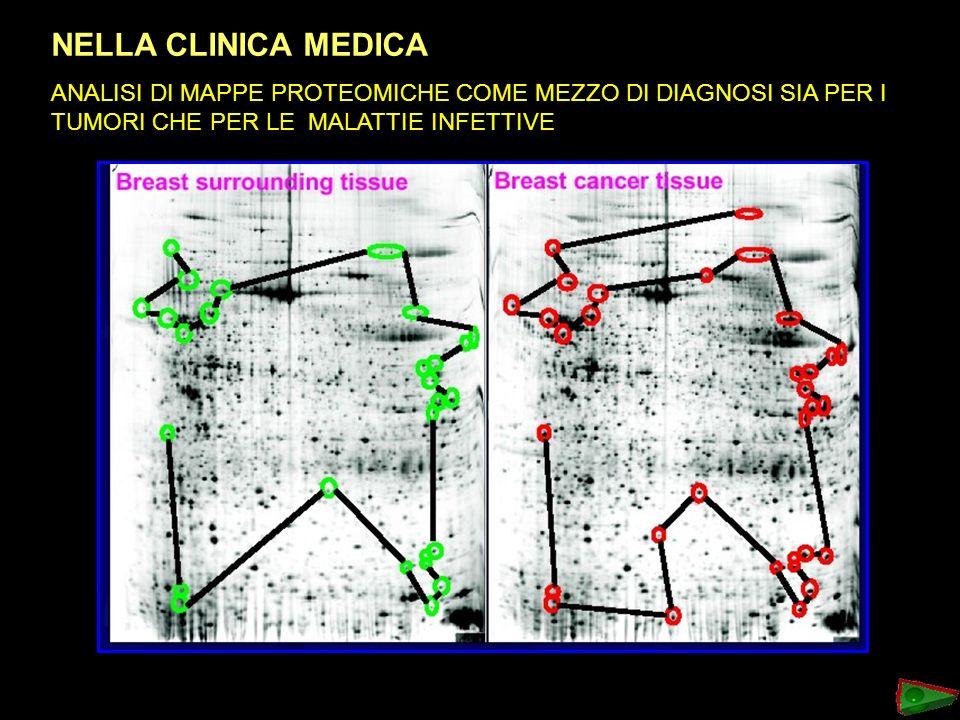 NELLA CLINICA MEDICA: ANALISI DI MAPPE PROTEOMICHE COME MEZZO DI DIAGNOSI SIA PER I TUMORI CHE PER LE MALATTIE INFETTIVE.
