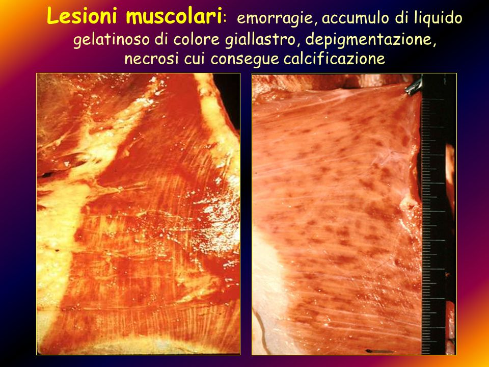 Lesioni muscolari: emorragie, accumulo di liquido gelatinoso di colore giallastro, depigmentazione, necrosi cui consegue calcificazione