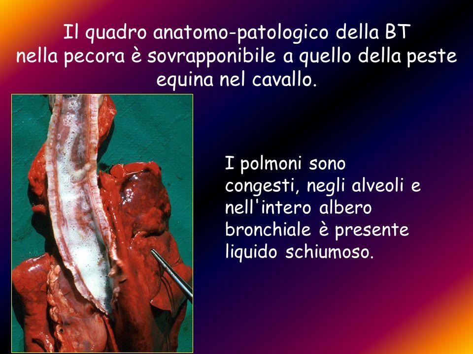 Il quadro anatomo-patologico della BT