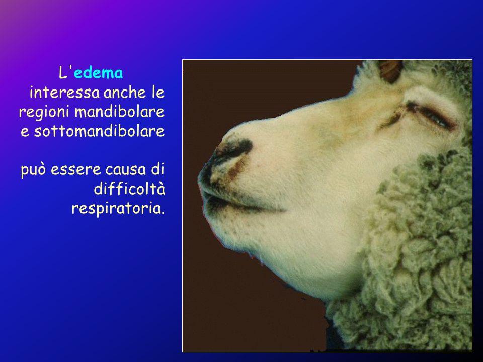 L edema interessa anche le regioni mandibolare e sottomandibolare.