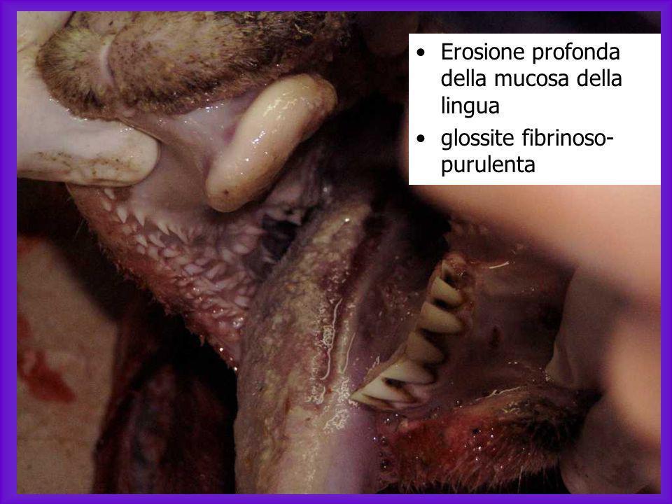 Erosione profonda della mucosa della lingua