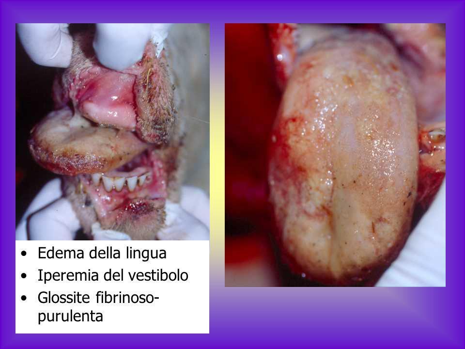 Edema della lingua Iperemia del vestibolo Glossite fibrinoso-purulenta