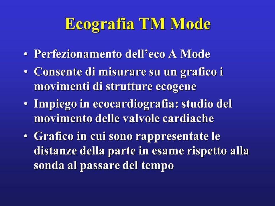 Ecografia TM Mode Perfezionamento dell'eco A Mode