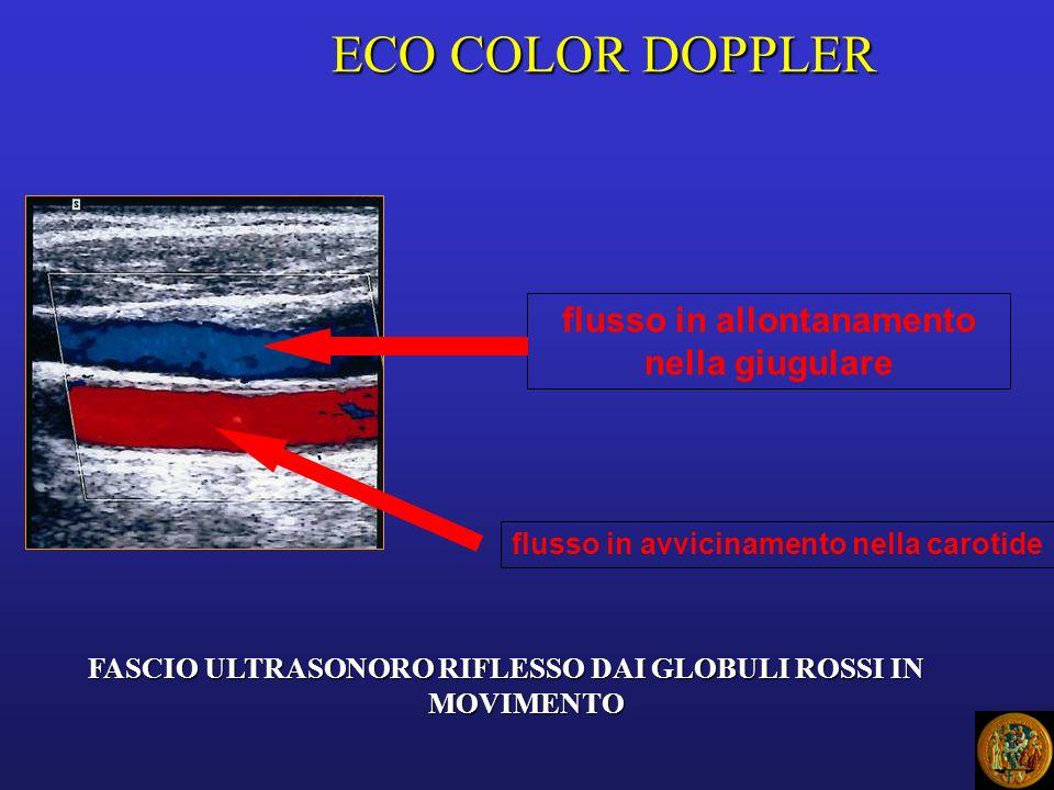 ECO COLOR DOPPLER flusso in allontanamento nella giugulare