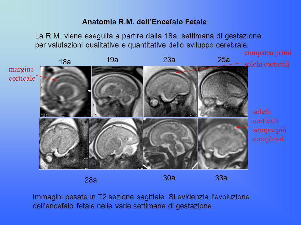Anatomia R.M. dell'Encefalo Fetale