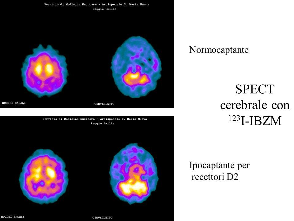 SPECT cerebrale con 123I-IBZM
