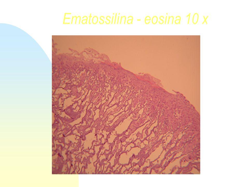 Ematossilina - eosina 10 x