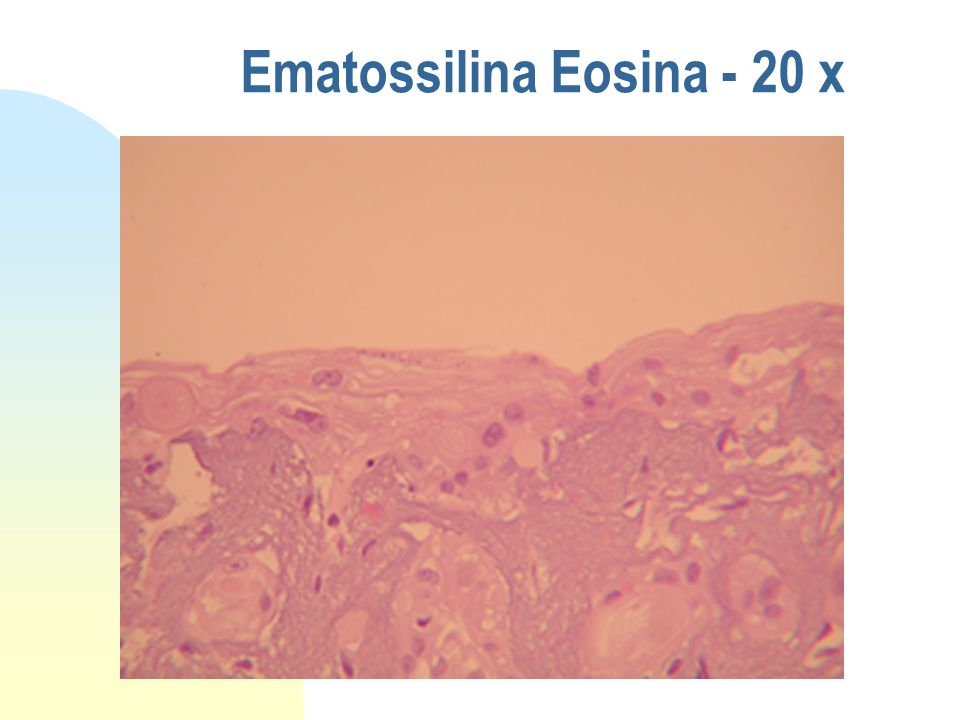 Ematossilina Eosina - 20 x