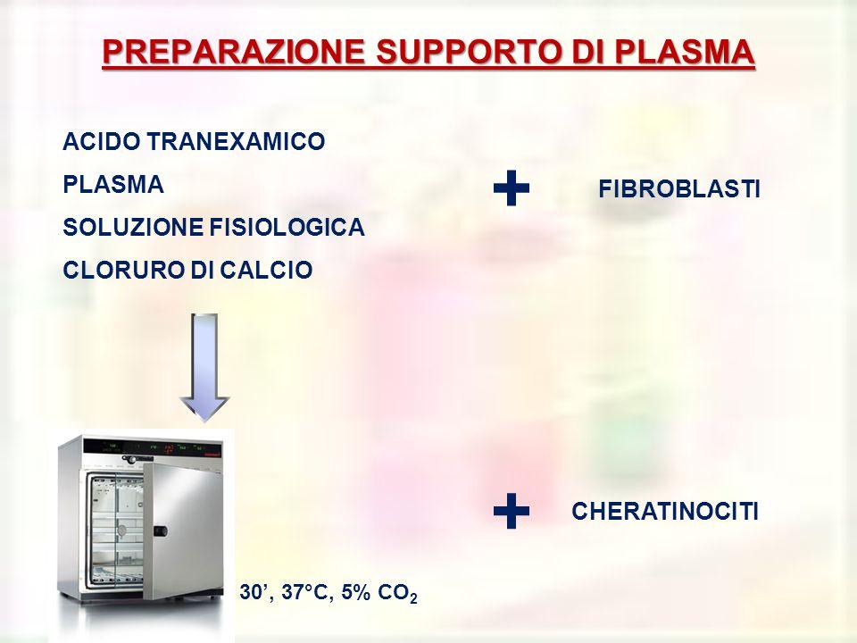 PREPARAZIONE SUPPORTO DI PLASMA
