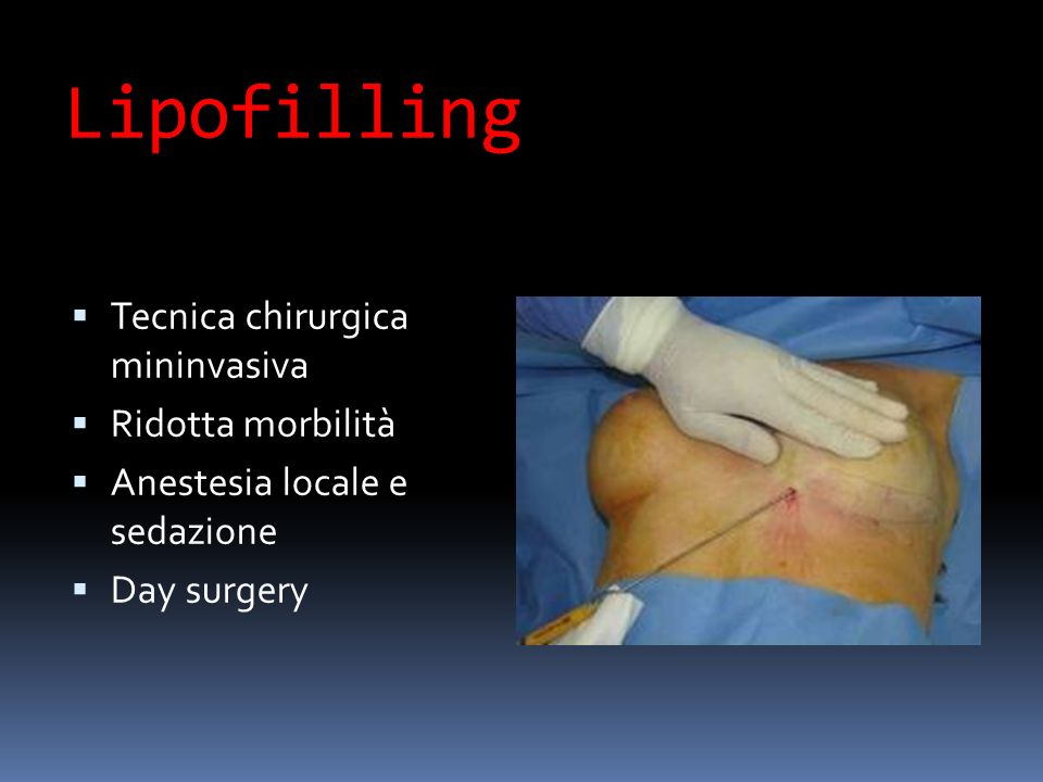 Lipofilling Tecnica chirurgica mininvasiva Ridotta morbilità