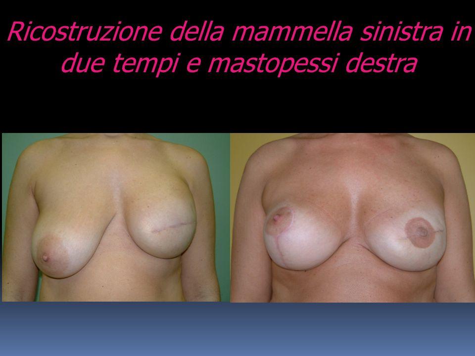 Ricostruzione della mammella sinistra in due tempi e mastopessi destra
