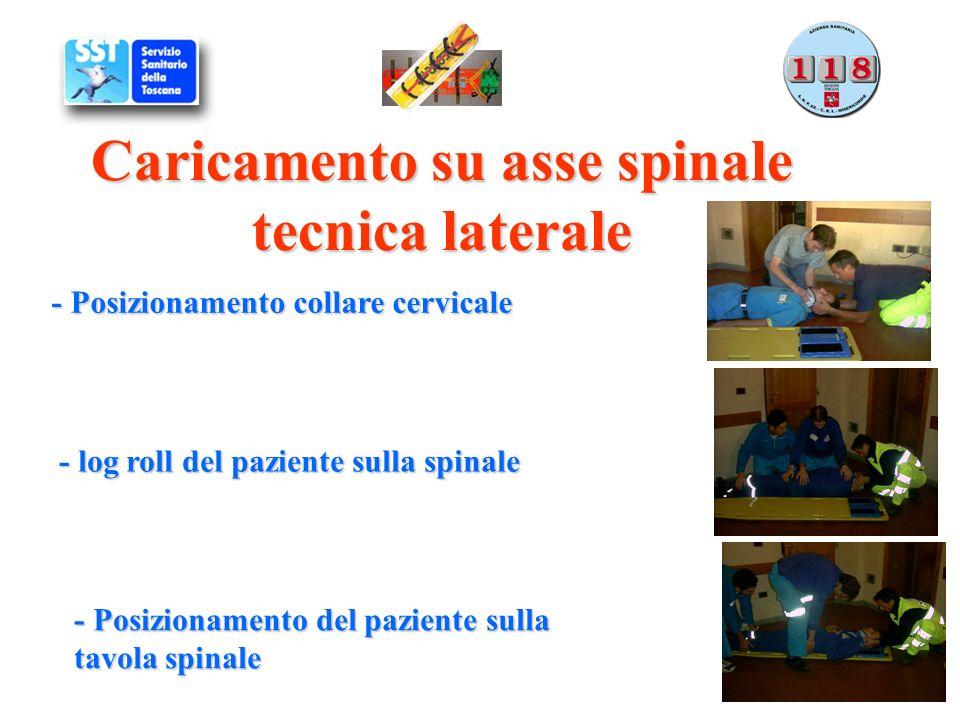 Caricamento su asse spinale tecnica laterale