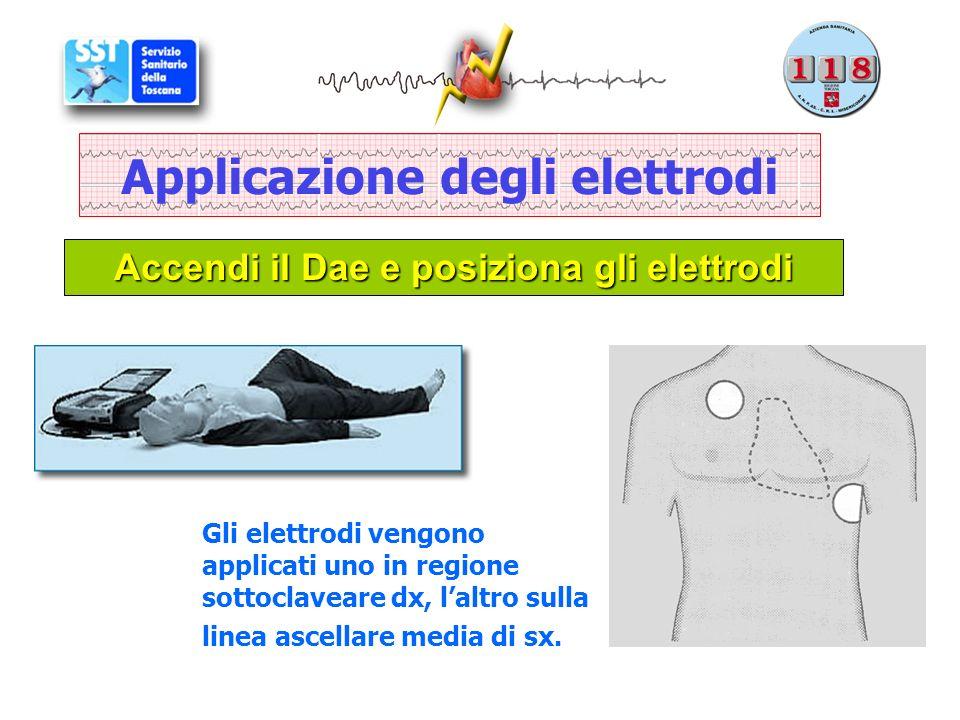 Applicazione degli elettrodi Accendi il Dae e posiziona gli elettrodi