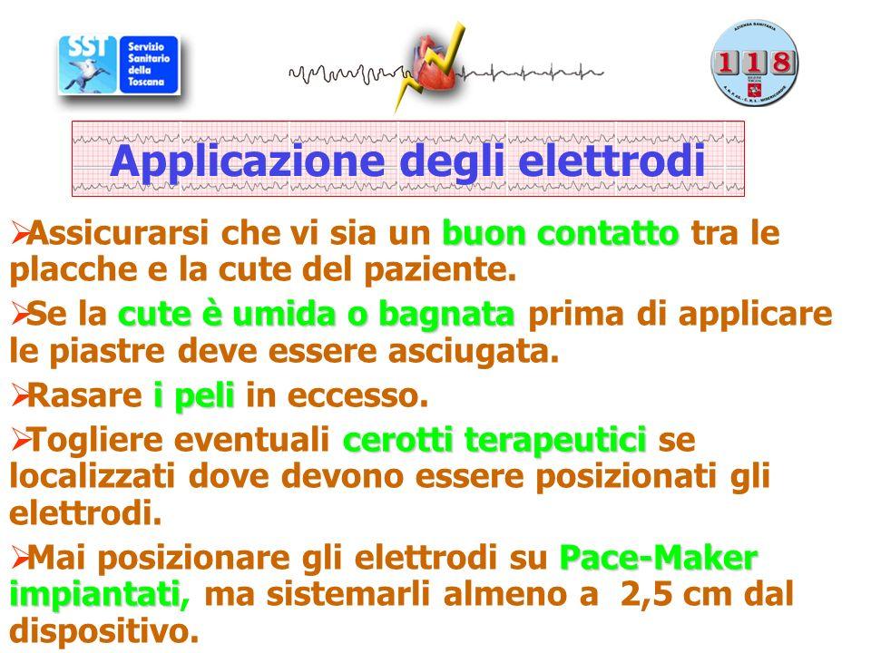 Applicazione degli elettrodi