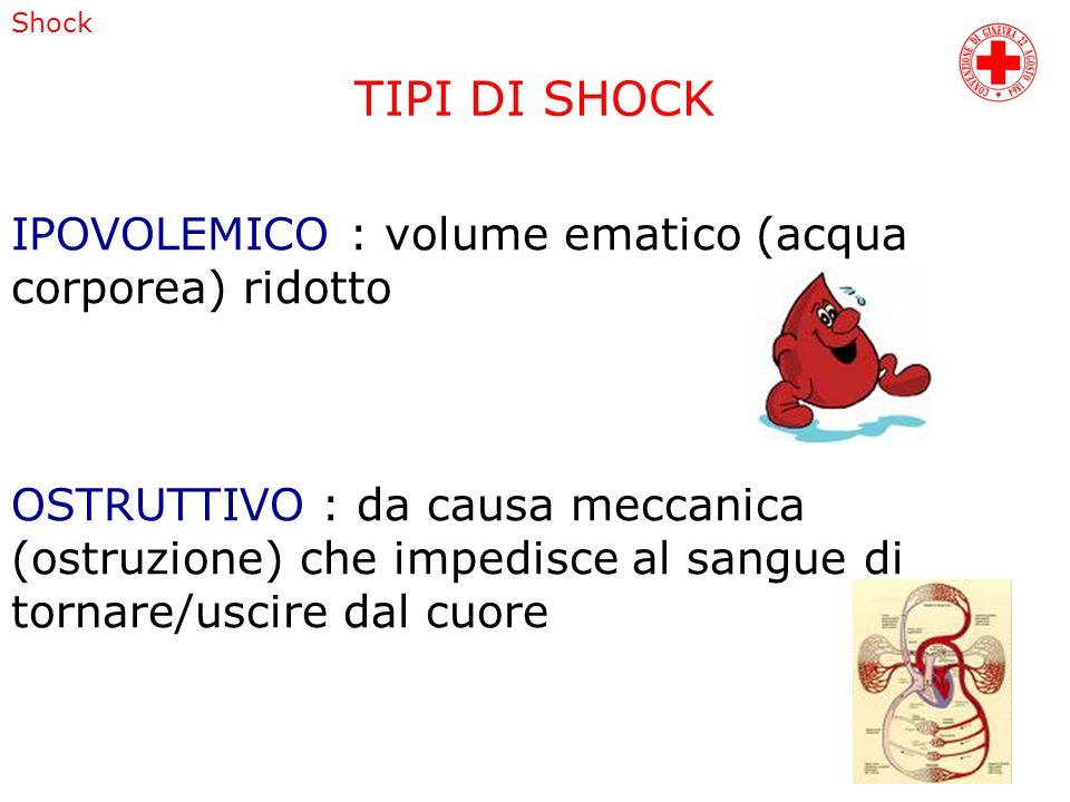 TIPI DI SHOCK IPOVOLEMICO : volume ematico (acqua corporea) ridotto