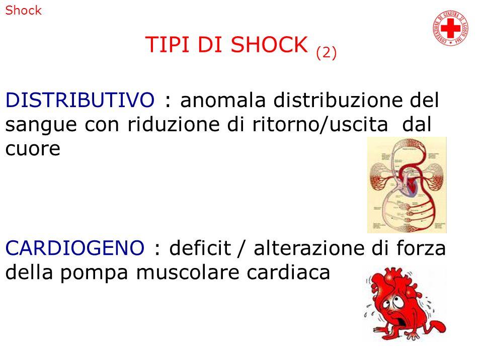 TIPI DI SHOCK (2) DISTRIBUTIVO : anomala distribuzione del