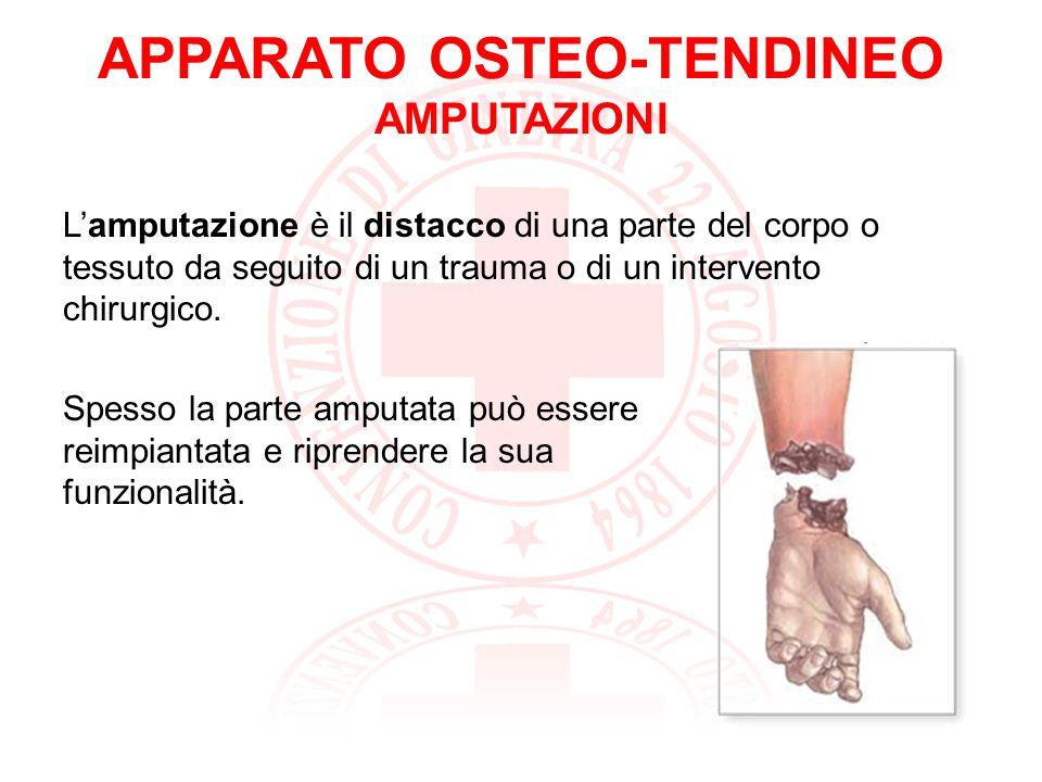 APPARATO OSTEO-TENDINEO AMPUTAZIONI