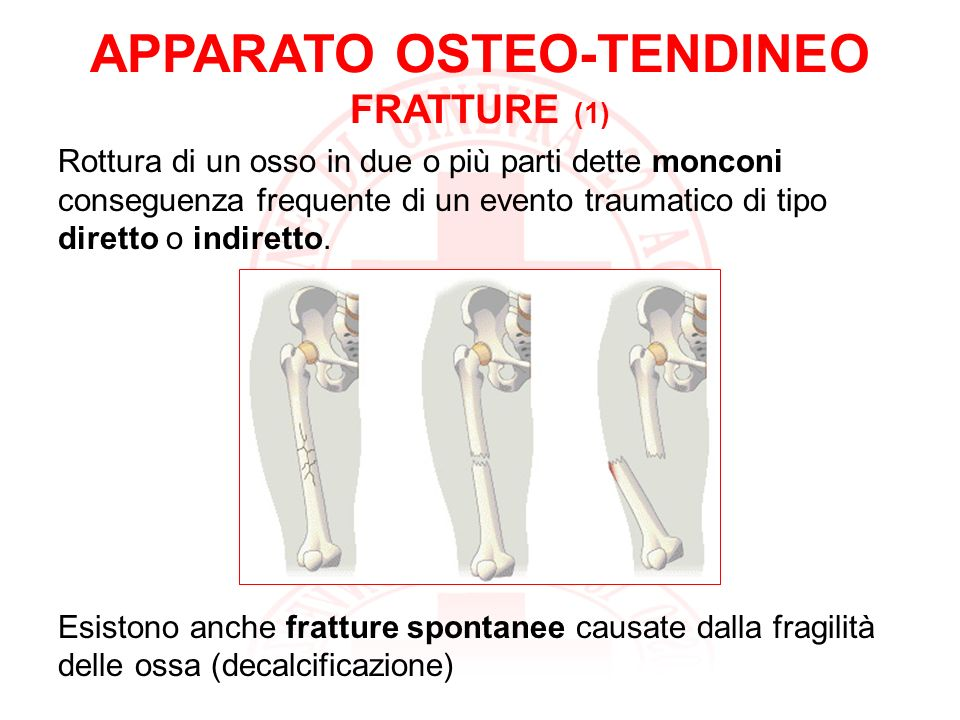APPARATO OSTEO-TENDINEO FRATTURE (1)