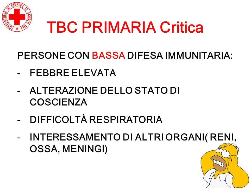 TBC PRIMARIA Critica PERSONE CON BASSA DIFESA IMMUNITARIA: