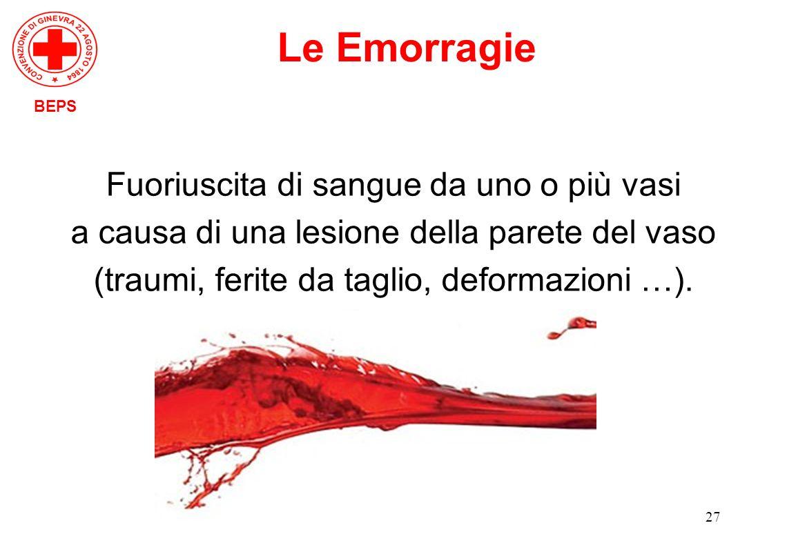 Le Emorragie Fuoriuscita di sangue da uno o più vasi