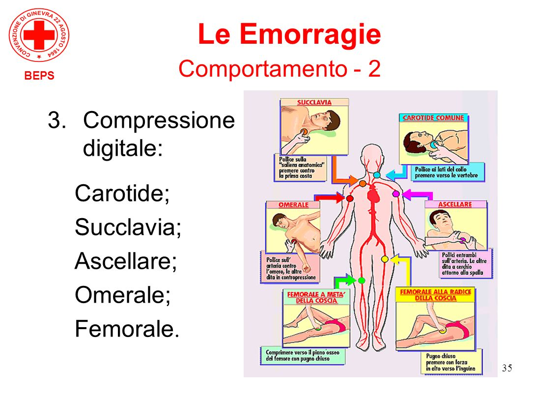 Le Emorragie Comportamento - 2 Compressione digitale: Carotide;